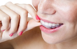 Did you know you can straighten your teeth without ruining your polished look with Invisalign in Bartlesville?