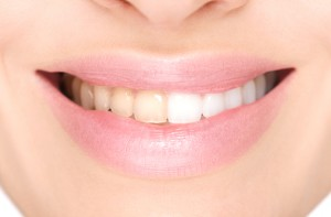 Benefit from at-home or in-office teeth whitening in Bartlesville.