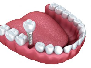 Animation of smile restored with dental implants