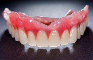 Broken denture that has been fixed.